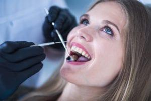 Todo lo que debes saber sobre el tratamiento de curetaje dental