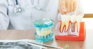Implantes dentales de calidad en Sevilla