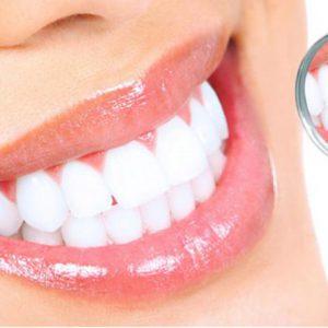 blanqueamiento dental en sevilla chandler