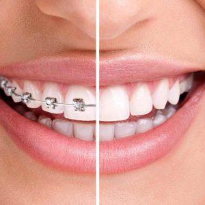 ortodoncia en sevilla chandler